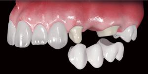Зубные протезы и их установка