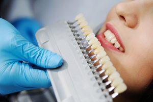 Подбор цвета для отбеливания зубов