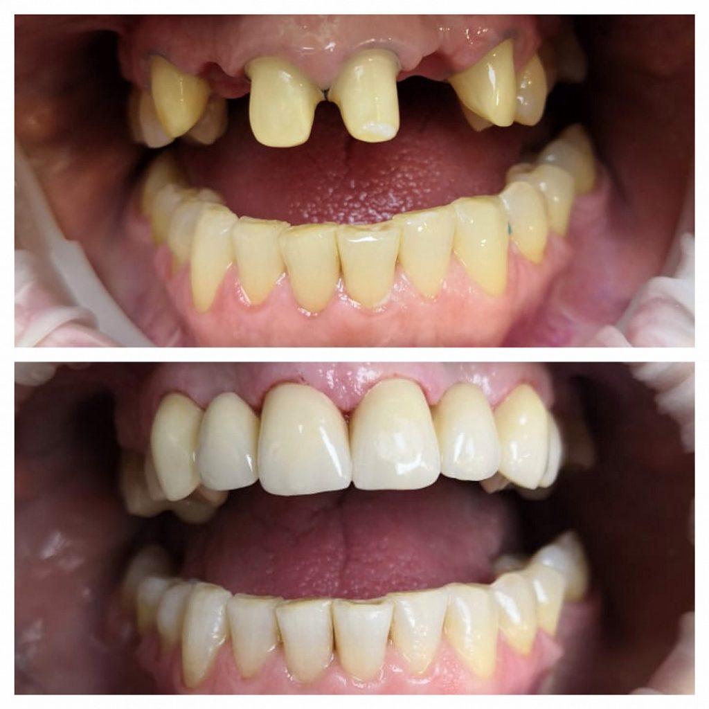 Протезирование зубов в Новосибирске